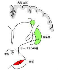 パーキンソン病の原因 パーキンソン病治療専門 横幕鍼灸院 '); }()); パーキン