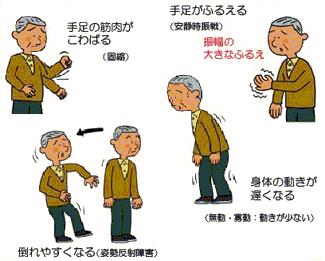 パーキンソン病治療専門 横幕鍼...
